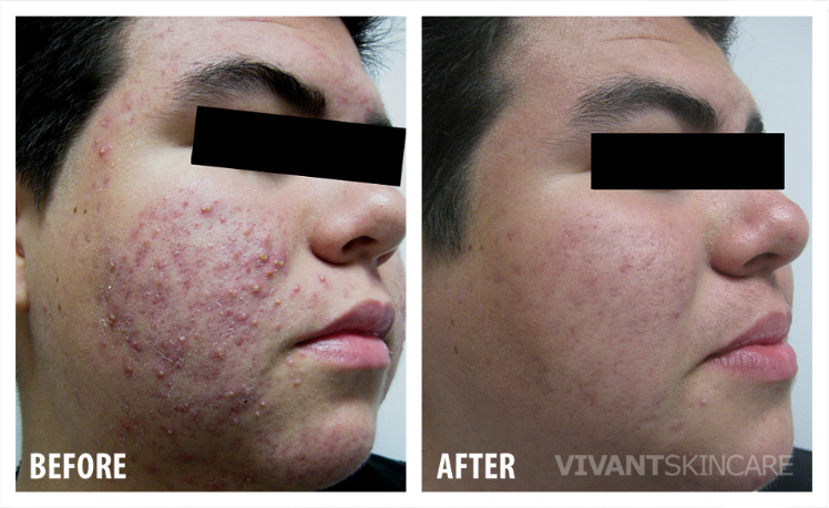 bna acne