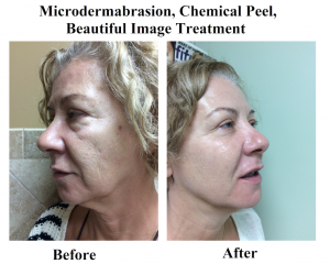 MICRODERMABRASION, CHEMICAL PEEL, BEAUTIFUL IMAGE TREATMENT BEFORE & AFTER