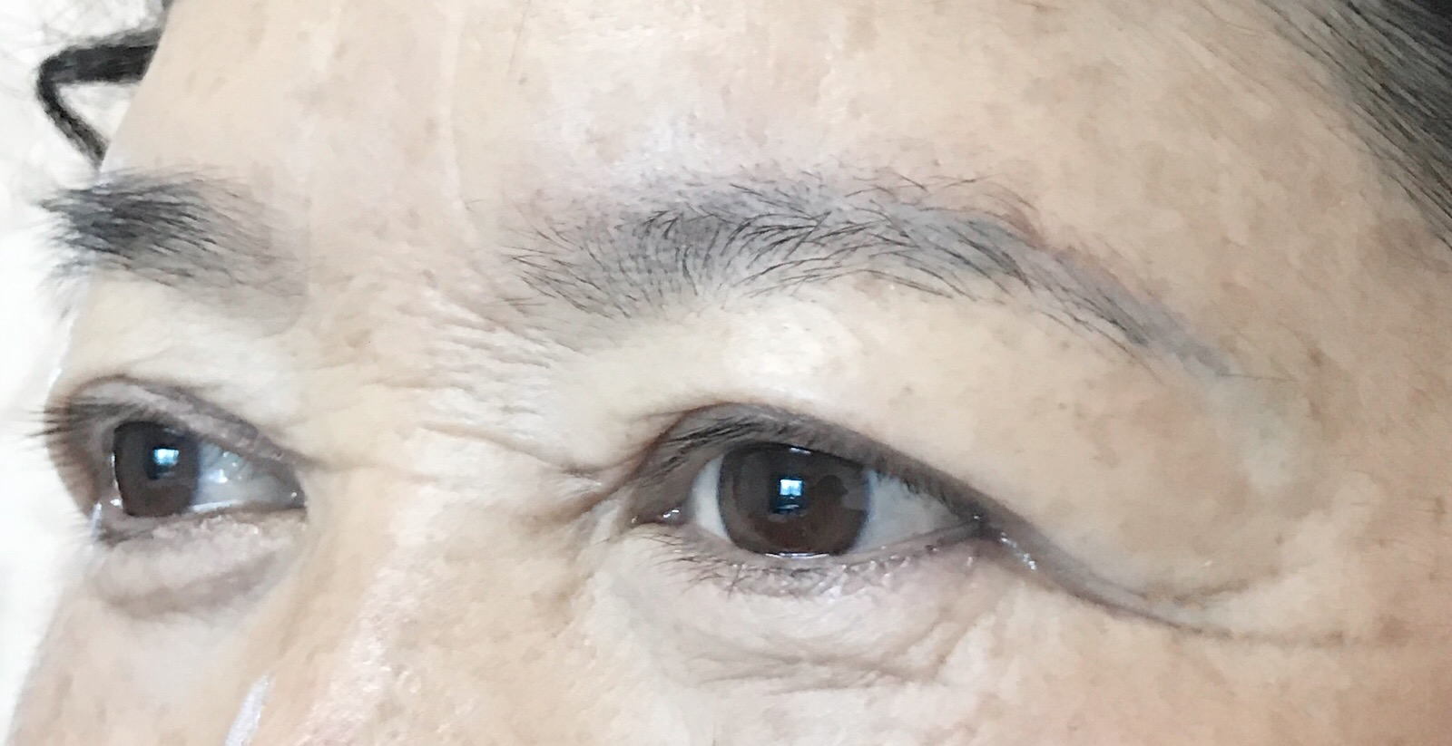 BEFORE FIXING BLUE INK BROWS