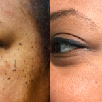 FIBROMAS BEFORE & AFTER