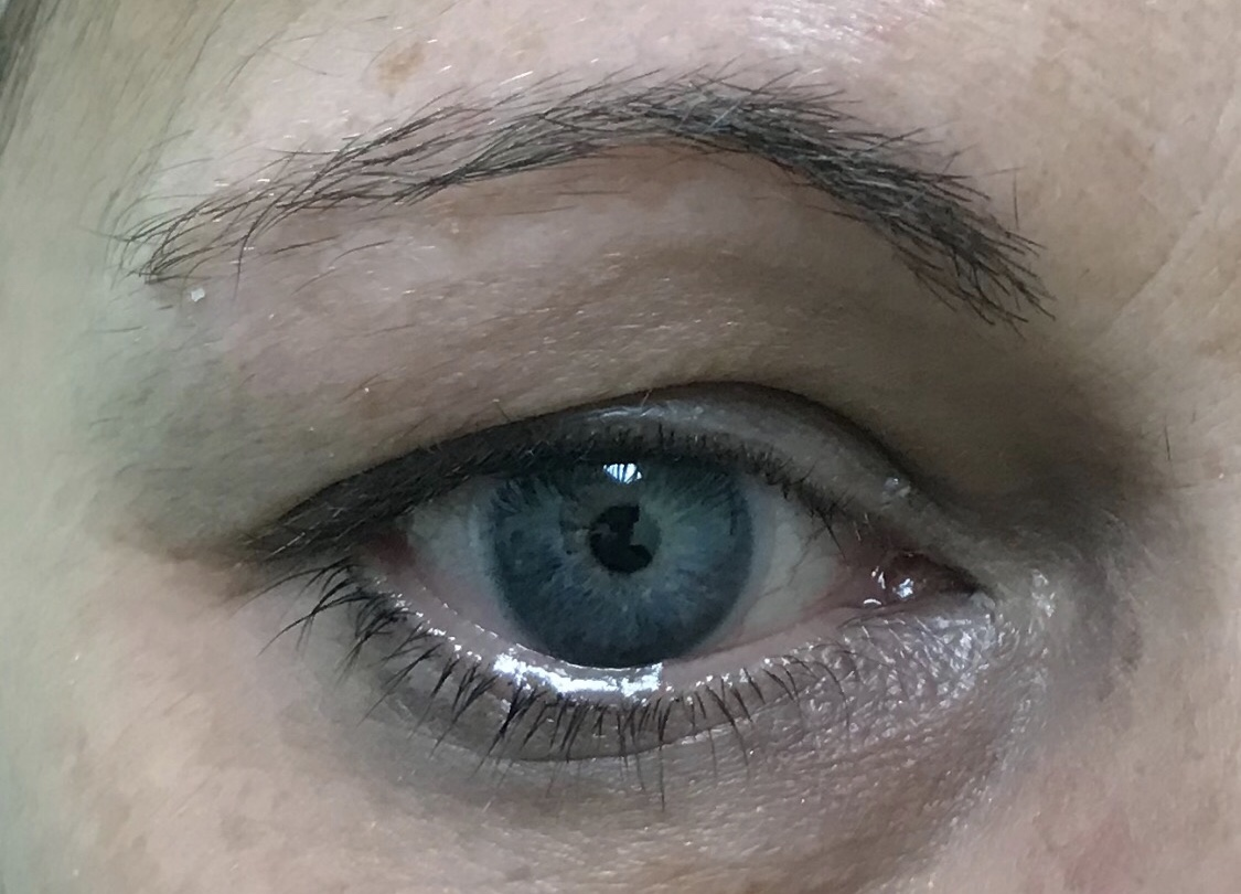 BEFORE BROW MICROBLADING
