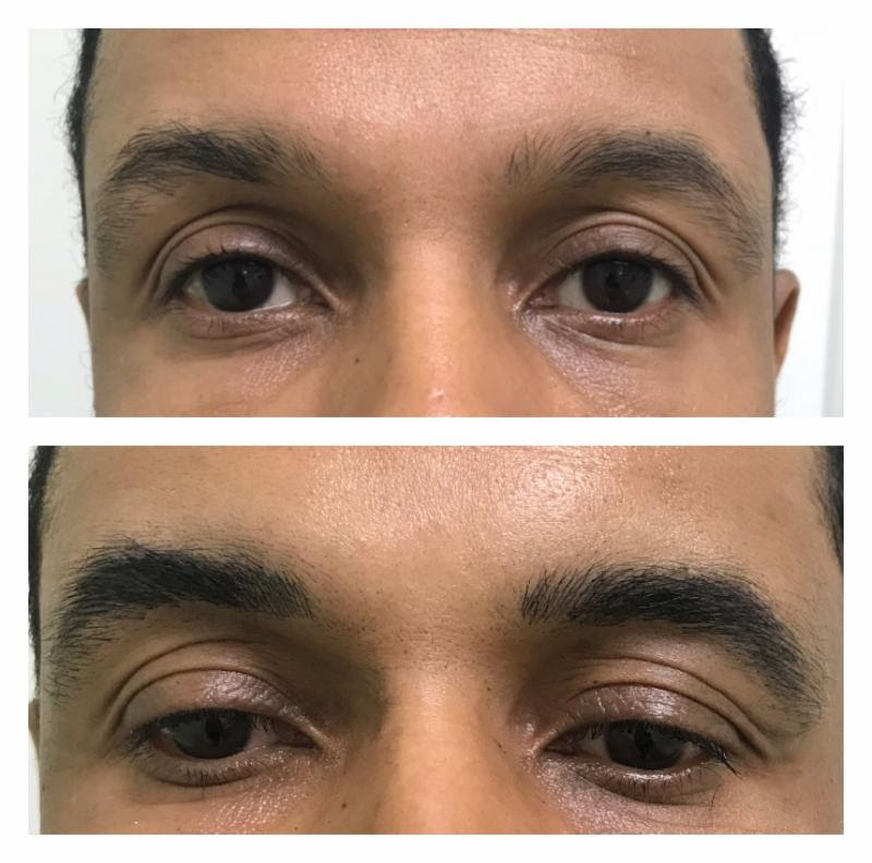 Men's BEFORE & AFTER BROW MICROBLADING