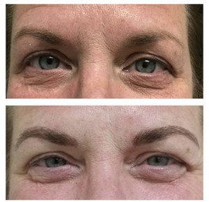 BEFORE & AFTER BROW MICROBLADING