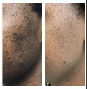 ACNE HYPERPIGMENTATION BEFORE & AFTER