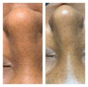 NOSE TREATMENT BEFORE & AFTER