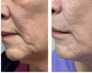 ANTI-AGING TREATMENT BEFORE & AFTER
