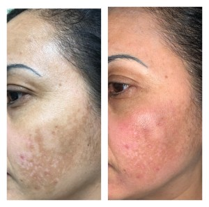 HYPER-PIGMENTATION TREATMENT BEFORE & AFTER