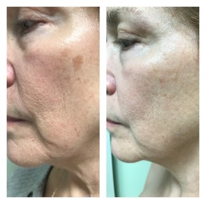 SUNSPOT TREATMENT BEFORE & AFTER